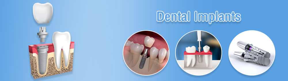 Dental Implants Prices