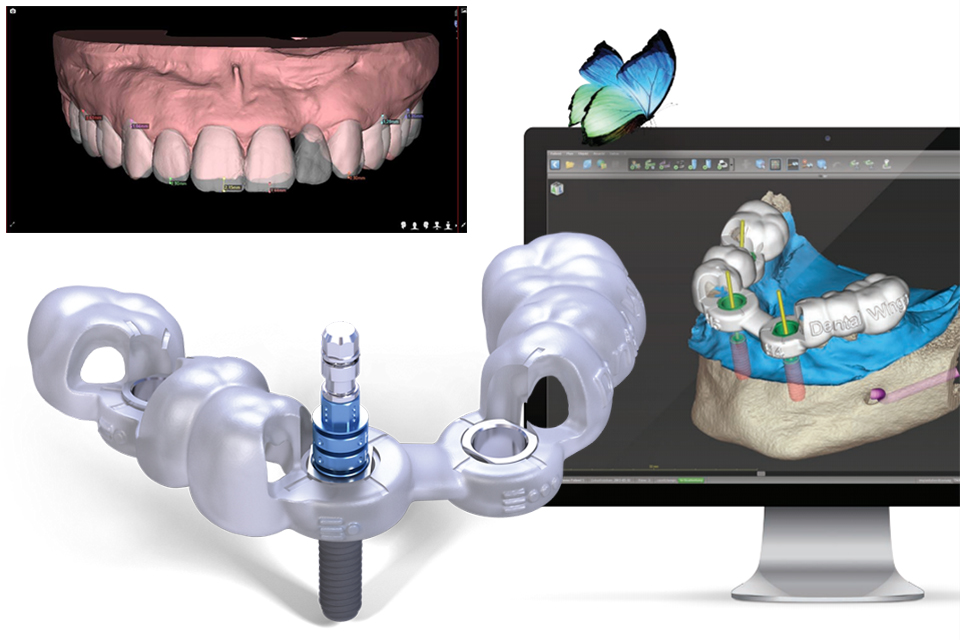 Digital Dentistry Concepts