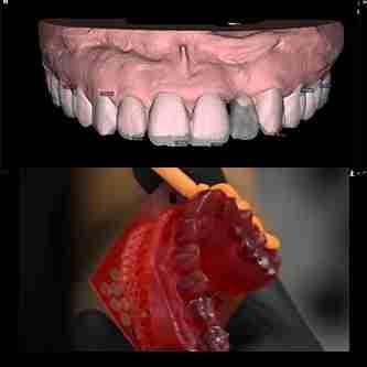 DSD数码牙齿设计流程展示