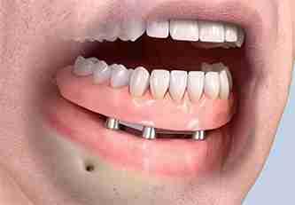 full dental implant dentures