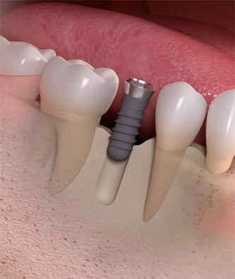 dental implant post surgery