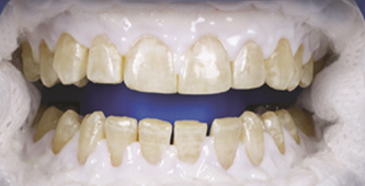 isolate gumline teeth whitening