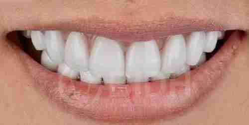 假牙全口重整展示第八案