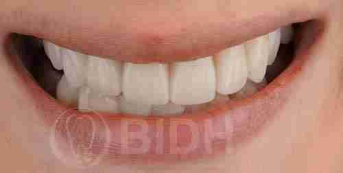 假牙全口重整展示第九案