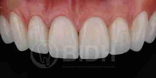 假牙全口重整展示第十案