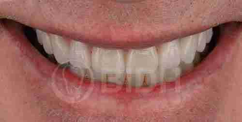 假牙全口重整展示第十一案