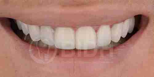 假牙全口重整展示第十二案