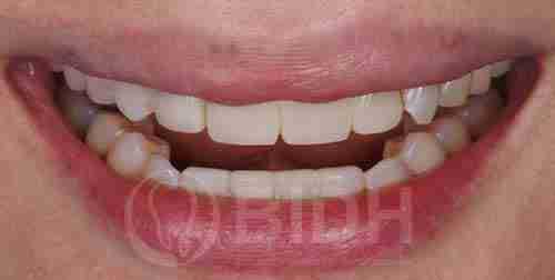 假牙全口重整展示第十四案