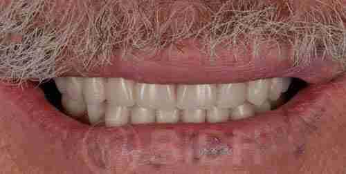 种植牙假牙重整过往案例第一例