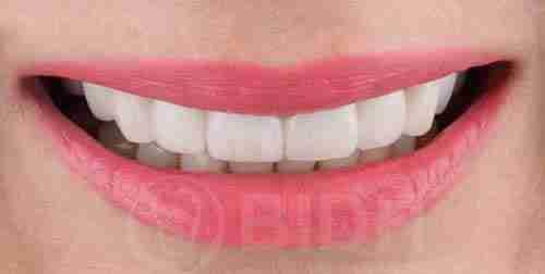 种植牙假牙重整过往案例第二例