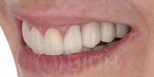 种植牙假牙重整过往案例第六例