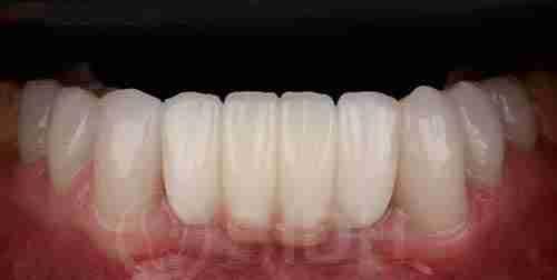 种植牙假牙重整过往案例第四例