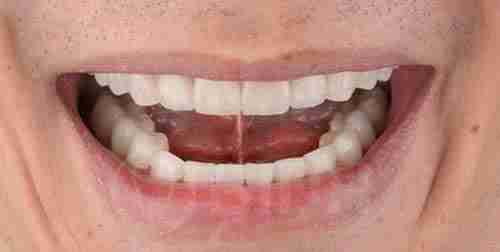 全口假牙重整个案成果展示第一例