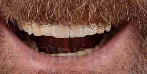 全口假牙重整个案成果展示第二例