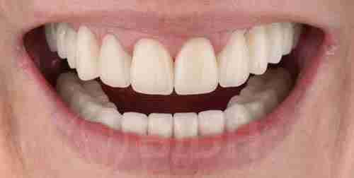 全口假牙重整个案成果展示第三例