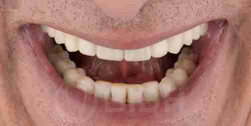 全口假牙重整个案成果展示第五例