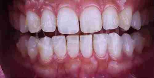 假牙重整个案,治疗前状况